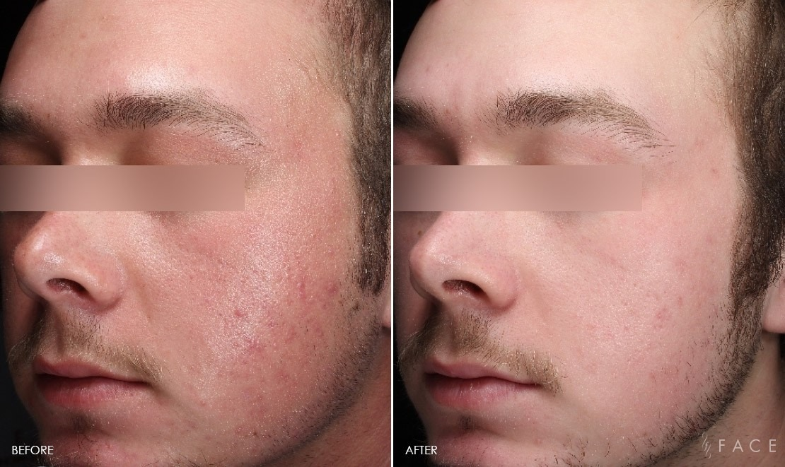 Rosacea Treatment in Dubai & Abu dhabi