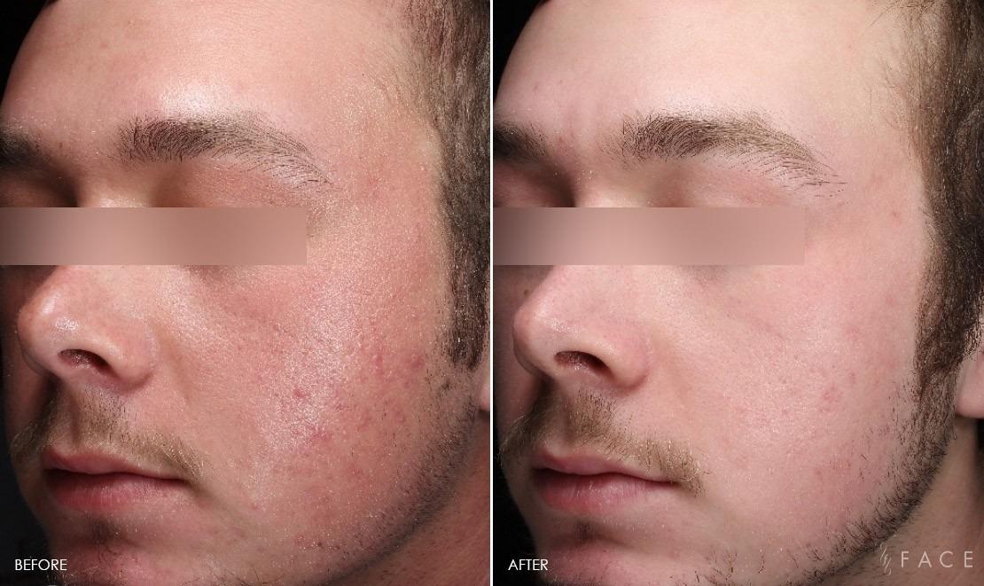 Rosacea Treatment in Dubai & Abu dhabi