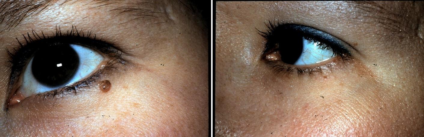Skin Lesion Removal Dubai Abu Dhabi & Sharjah