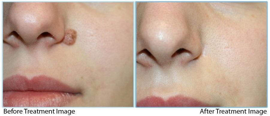 Skin Lesion Removal in Abu Dhabi