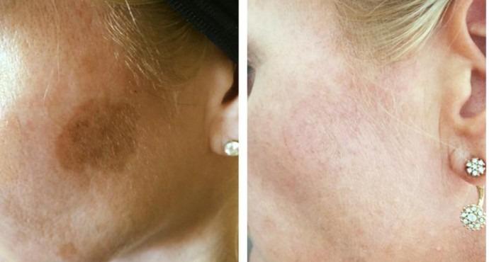 Skin Lesion Removal in Dubai & Abu Dhabi