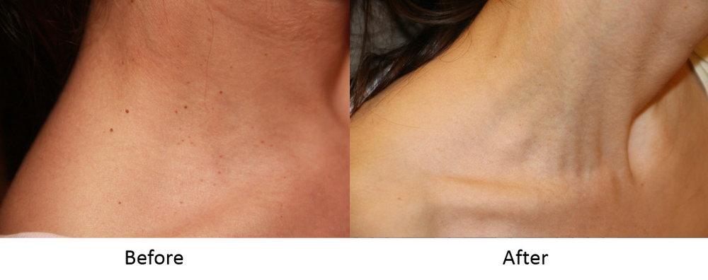 Skin Tag Removal Dubai ABu Dhabi & Sharjah