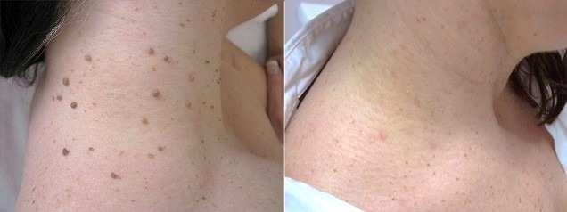 Skin Tag Removal in Abu DhabiSkin Tag Removal in Abu Dhabi