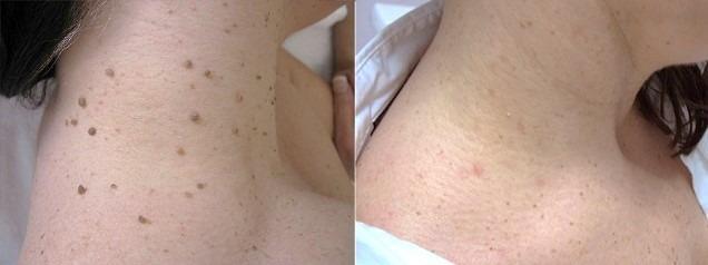 Skin Tag Removal in Abu DhabiSkin Tag Removal in Abu Dhabi