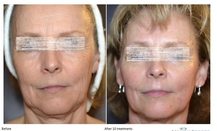 Skin Tightening and Contouring in Dubai