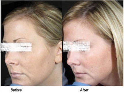Skin Tightening and Contouring in dubai sharjah