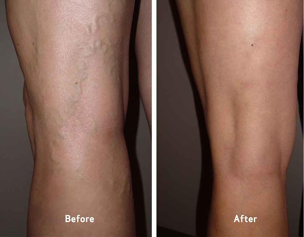 Varicose Veins Treatment Dubai & Abu Dhabi