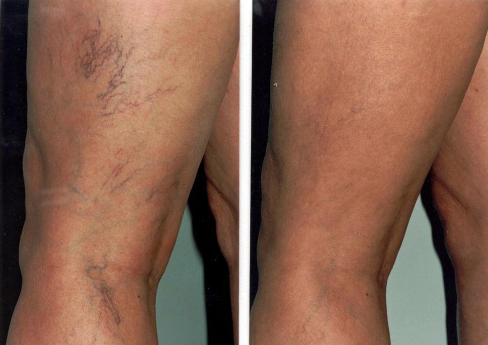 Varicose Veins Treatment in Abu Dhabi