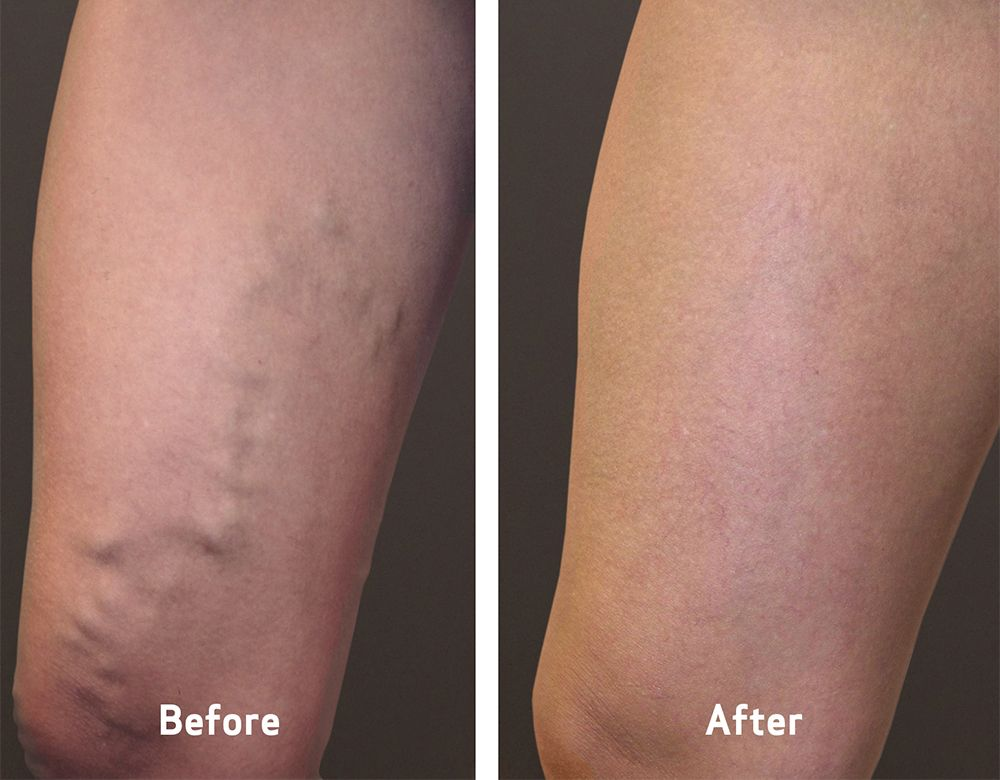 Varicose Veins Treatment in Dubai