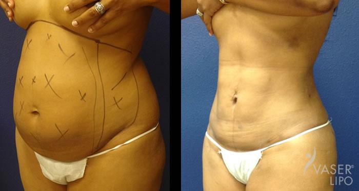 Vaser Liposuction in Dubai Abu Dhabi & Sharjah