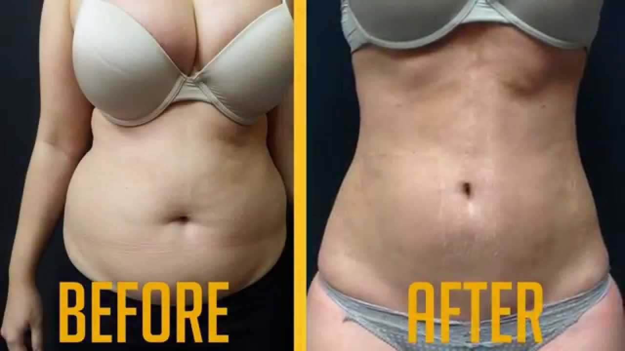 Vaser Liposuction in Dubai