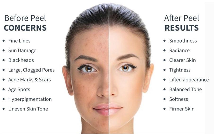benefits of chemical peels