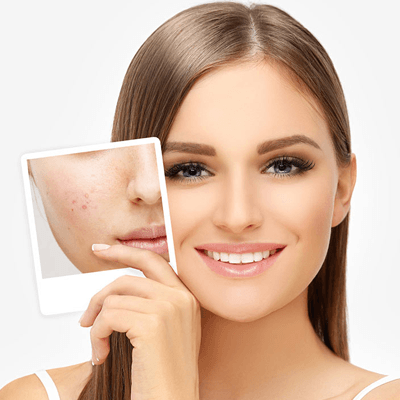 Acne Treatment in Dubai