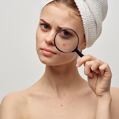 Acne Removal Treatment in Dubai