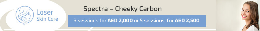 Spectra – Cheeky Carbon Offer