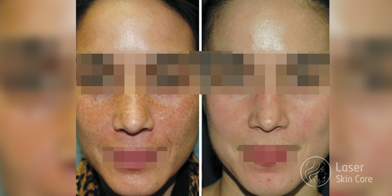 chemical peels treatment results skin lines fine