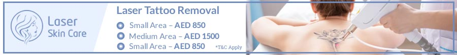 Laser Tattoo Removal Offer