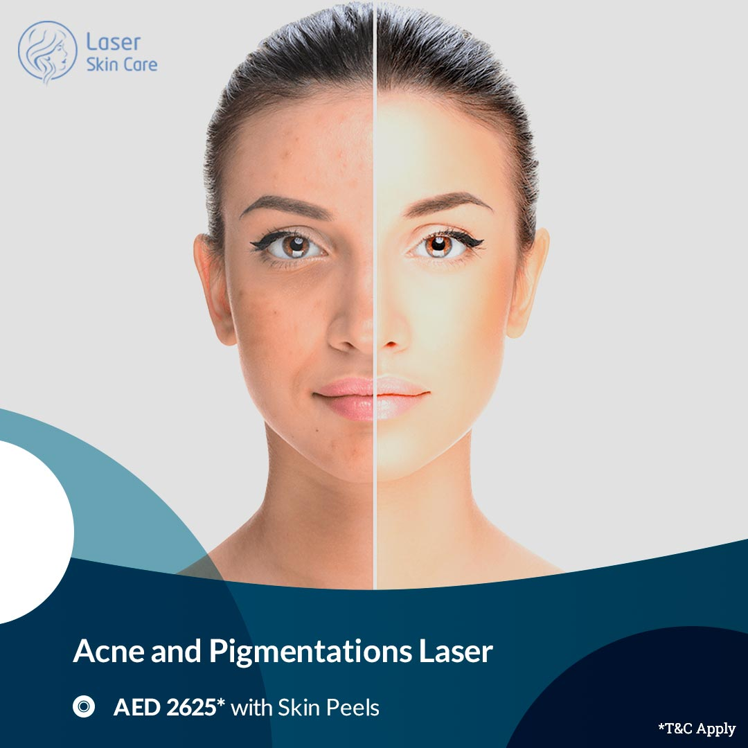 Acne And Pigmentations Laser Offer