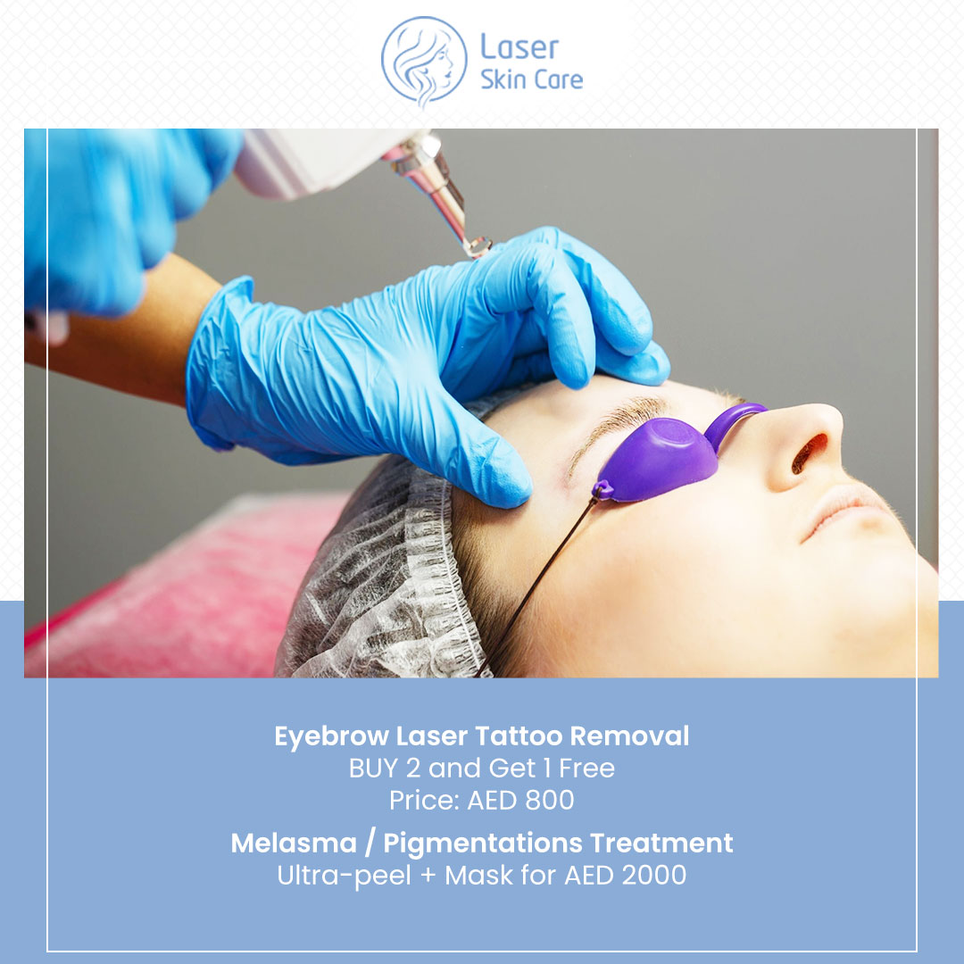 Eyebrow Laser Tattoo Removal Offer