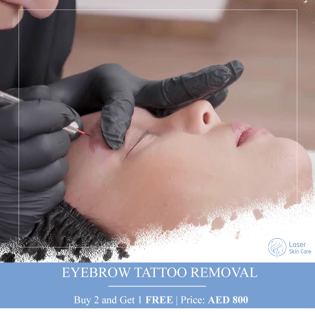 EyeBrow Tattoo Removal Offer