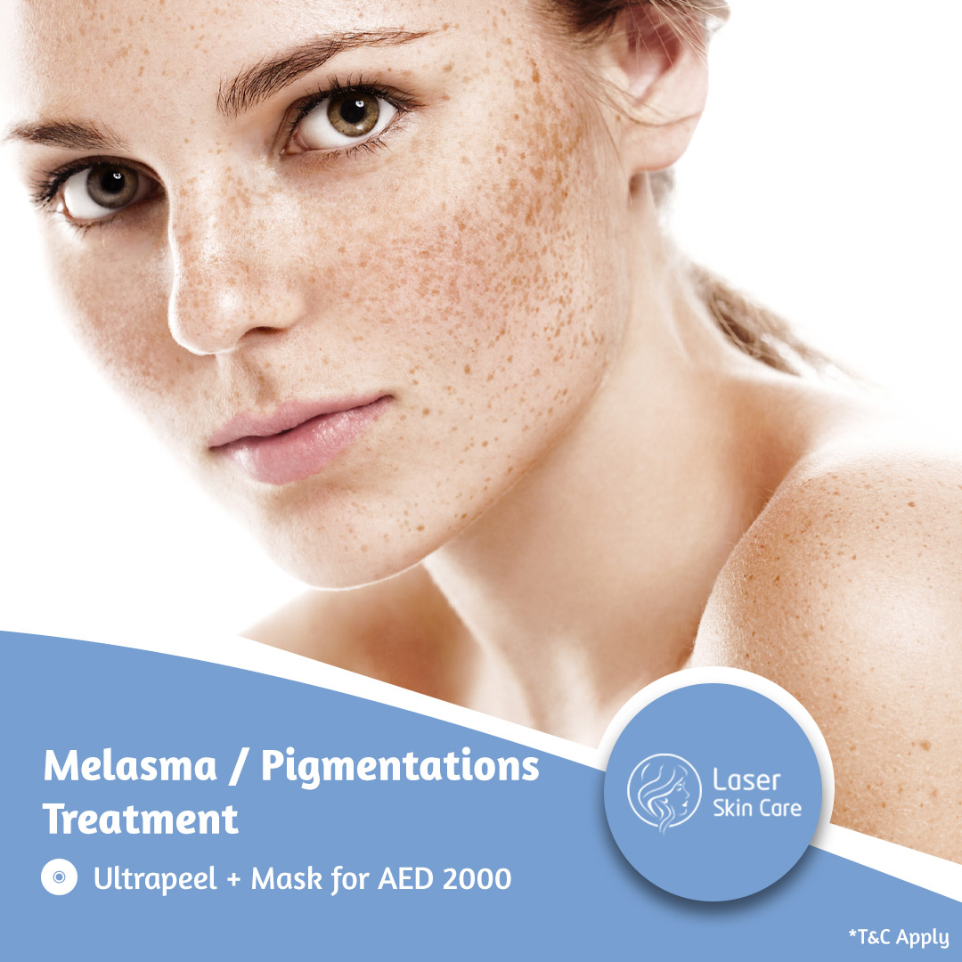 Melasma - Pigmentations Offer