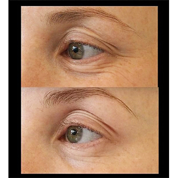 Dr. Rutsnei Schmitz before & After